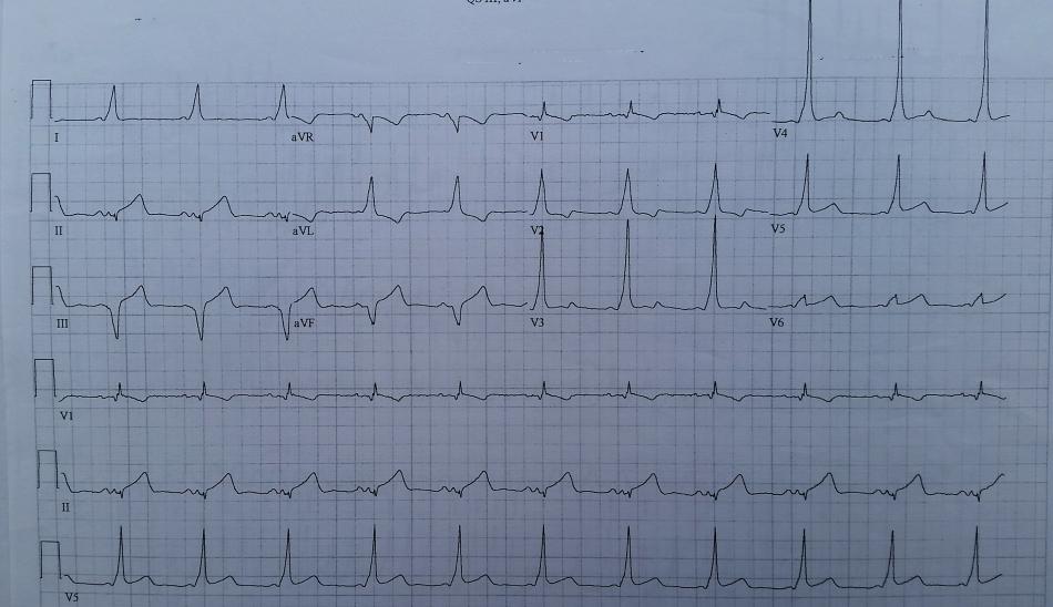 20180409_post cardioversion